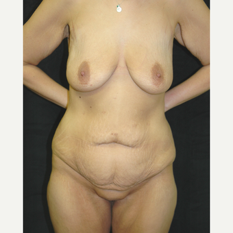 25-34 year old woman treated with Body Lift before 3181649