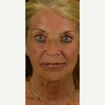 Results With Injectable Fillers after 3246692
