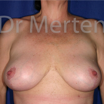 Breast Reduction after 3681207