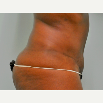 Tummy tuck performed in conjunction with hysterectomy. after 3365849