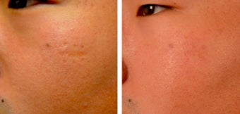 18-24 year old man treated with Microneedling before 2059267