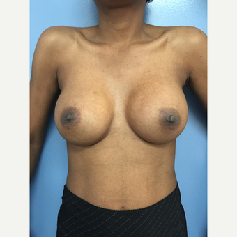 35-44 year old woman treated with Breast Augmentation after 2779976