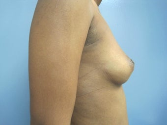 35-44 year old woman treated with Breast Augmentation 2779976