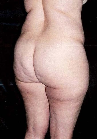 Liposuction 499962