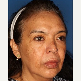 45-54 year old woman treated with Chemical Peel before 3711665