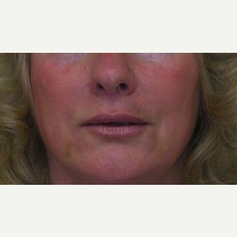 55-64 year old woman treated with Lip Lift after 1733635