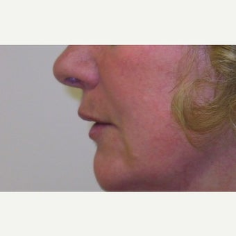 55-64 year old woman treated with Lip Lift 1733635