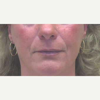 55-64 year old woman treated with Lip Lift before 1733635