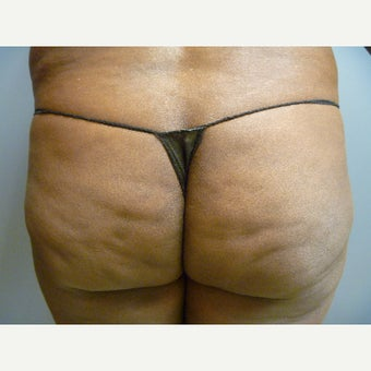45-54 year old woman treated with Brazilian Butt Lift before 1603871