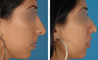 Revision Rhinoplasty before 1208282