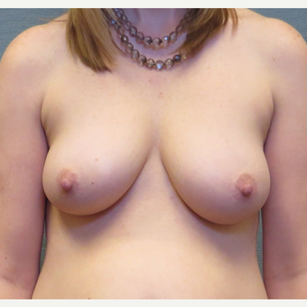 39 year old woman treated with Breast Lift with Implants before 3507378