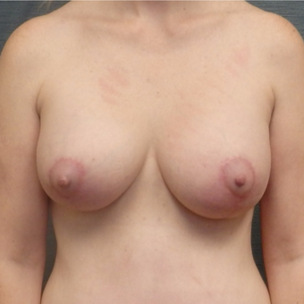 39 year old woman treated with Breast Lift with Implants after 3507378