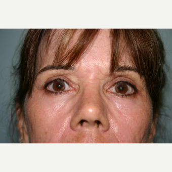 55 year old woman treated with Eyelid Surgery after 3442586