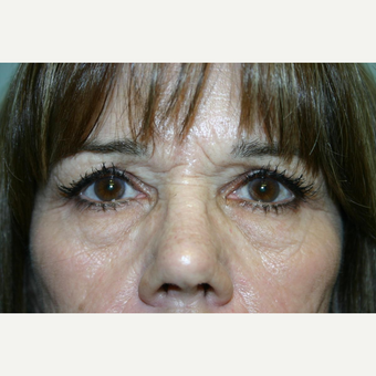 55 year old woman treated with Eyelid Surgery before 3442586