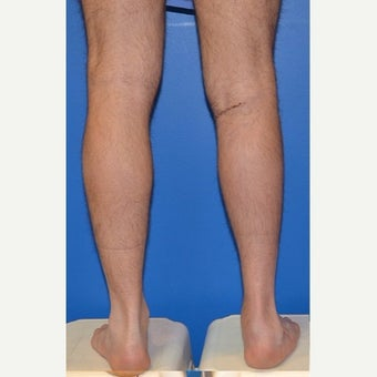 18-24 year old woman treated with Calf Implant after 1998267