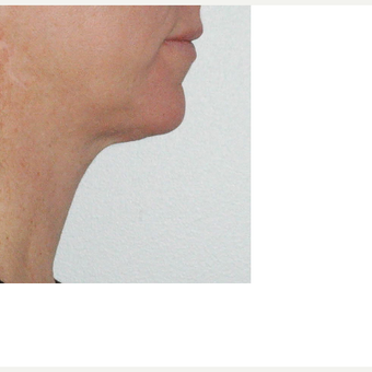 35-44 year old woman treated with Kybella after 3541866