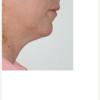 35-44 year old woman treated with Kybella before 3541866
