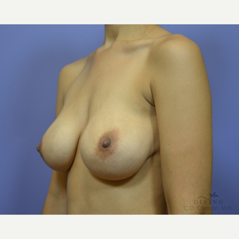 25-34 year old woman treated with Breast Augmentation before 3419074