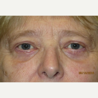 55-64 year old woman treated with Eyelid Surgery after 3026537