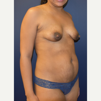 35-44 year old woman treated with Breast Lift with Implants before 3348702