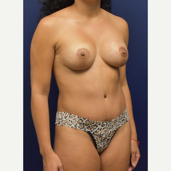 35-44 year old woman treated with Breast Lift with Implants after 3348702