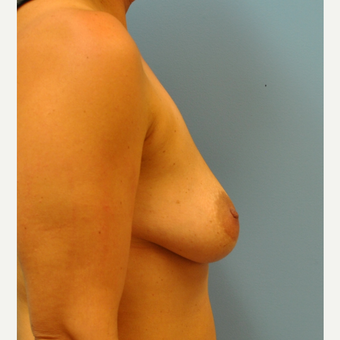 37  year old woman, breast augmentation and per-areolar mastopexy, 425 cc saline before 3543299