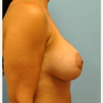 37  year old woman, breast augmentation and per-areolar mastopexy, 425 cc saline after 3543299