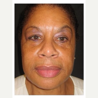 55-64 year old woman treated with Non Surgical Face Lift after 3181099