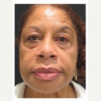 55-64 year old woman treated with Non Surgical Face Lift before 3181099