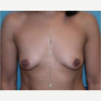 38 year old woman treated with Breast Augmentation before 3725757