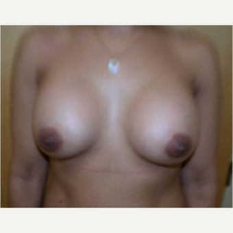 38 year old woman treated with Breast Augmentation after 3725757