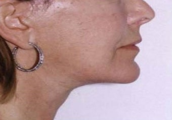 55-64 year old woman treated with lower face/neck lift