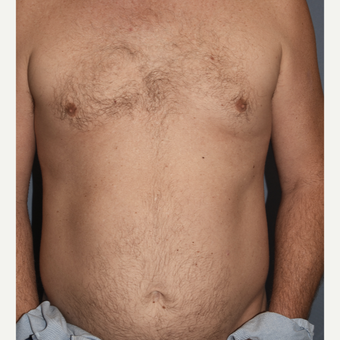 45-54 year old man treated with Pec Implants before 3411077