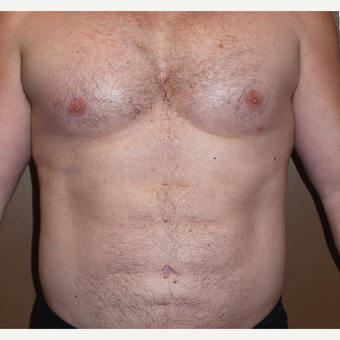 45-54 year old man treated with Pec Implants after 3411077