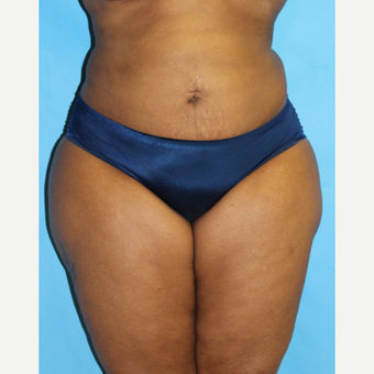 45-54 year old woman treated with Smart Lipo after 3437497