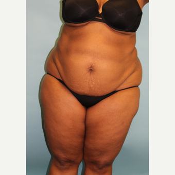 45-54 year old woman treated with Smart Lipo before 3437497