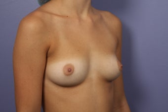 18 yr old Breast Augmentation With Fat before 998068