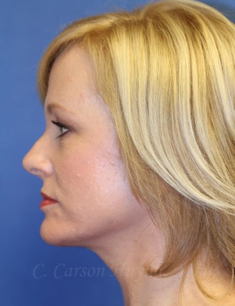 Middle age woman treated with Perma-Lift Facelift and necklift. 777543