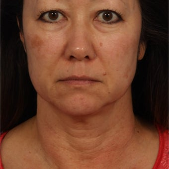 45-54 year old woman treated with Ultherapy before 2242596