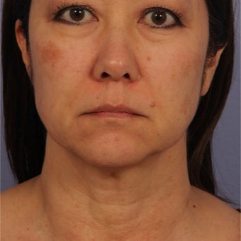 45-54 year old woman treated with Ultherapy after 2242596