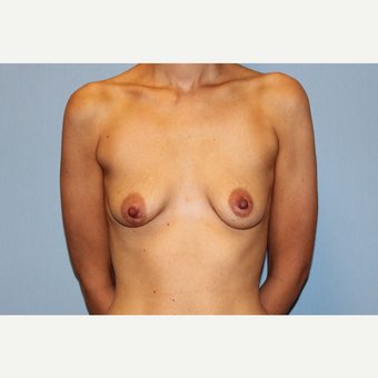 25-34 year old woman treated with Breast Augmentation before 3569827