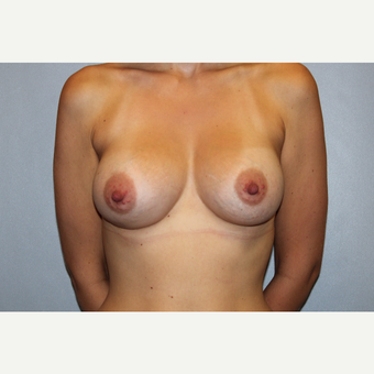 25-34 year old woman treated with Breast Augmentation after 3569827