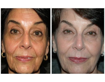 "Juvederm, Radiesse, and Botox for a ""Liquid Lift"" before 1011264"
