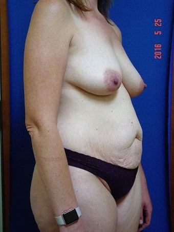 35-44 year old woman treated with Mommy Makeover 3246448