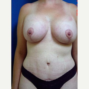 35-44 year old woman treated with Mommy Makeover after 3246448