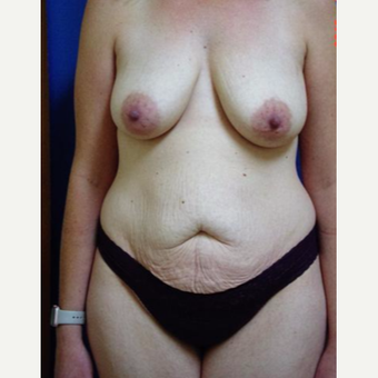 35-44 year old woman treated with Mommy Makeover before 3246448
