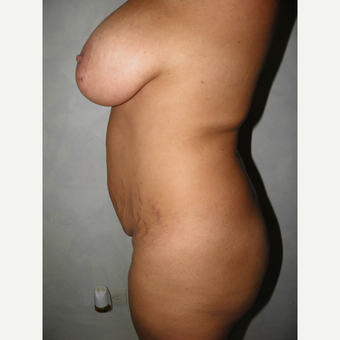 35-44 year old woman treated with Mommy Makeover before 3129497