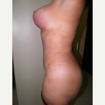 35-44 year old woman treated with Mommy Makeover after 3129497