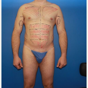 45-54 year old man treated with Liposuction before 3524096