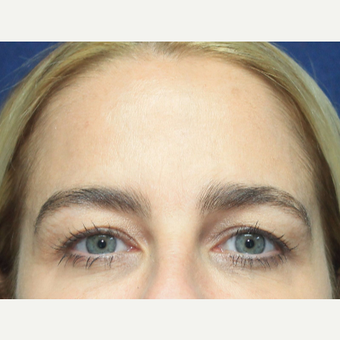 35-44 year old woman treated with Botox after 3520265